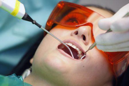 Tẩy trắng răng có tốt không?