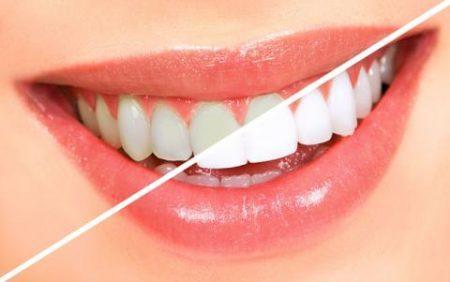 Tẩy trắng răng ở đâu tốt nhất tphcm?