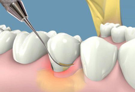 Bệnh chảy máu chân răng ở phụ nữ khi mang thai