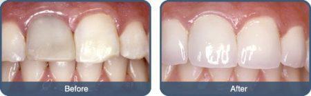 Bọc răng sứ có niềng được không?
