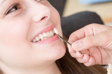 Bọc răng sứ veneer ở đâu tốt tphcm ngày nay