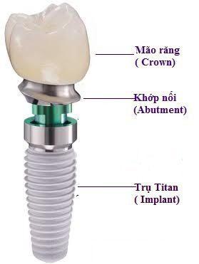 Các loại trụ implant nha khoa hiện nay