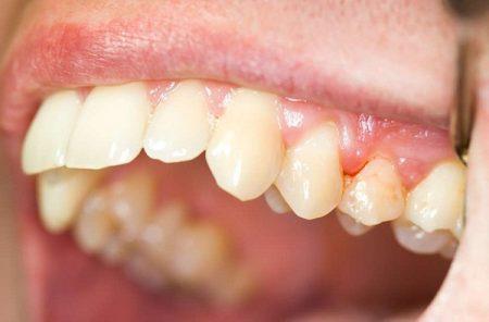 Cách chữa viêm lợi hở quanh chân răng