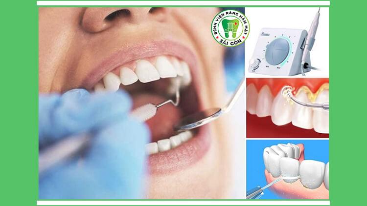 cạo vôi răng ngừa chảy máu chân răng