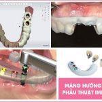 cay-ghep-implant-la-gi-1