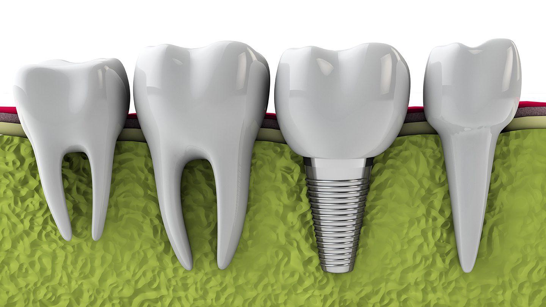 Cấy ghép implant trong nha khoa là gì?