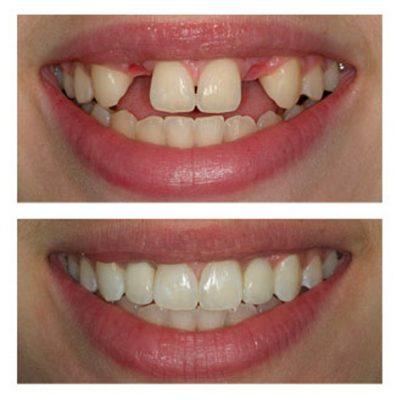 Cấy ghép răng implant có tốt không ?