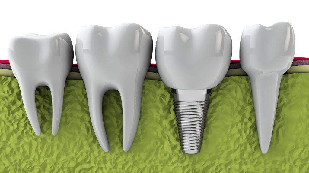 Cấy ghép răng implant ở đâu tốt nhất tại Sài Gòn