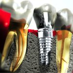 Cấy ghép trụ implant có ảnh hưởng gì đến sức khỏe không?