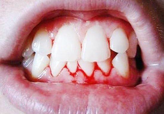 Chảy máu chân răng sau khi ngủ dậy