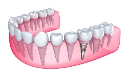 Chi phí trồng răng sứ vĩnh viễn