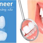 Dán răng sứ veneer giá bao nhiêu?