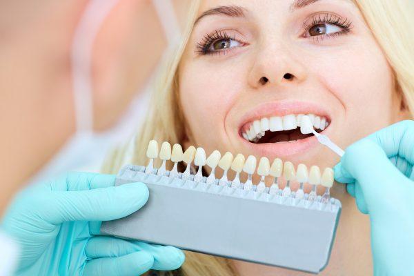 dán răng sứ veneer giá bao nhiêu