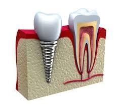 dia-chi-trong-rang-implant-o-dau-tot-1