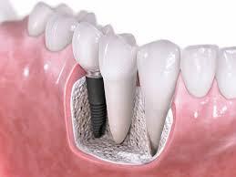 dia-chi-trong-rang-implant-o-dau-tot-nhat-2
