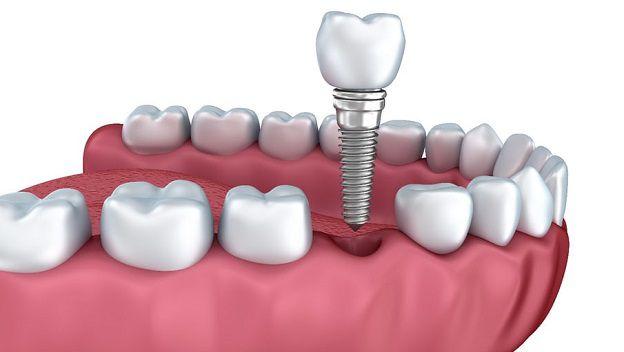 dia-chi-trong-rang-implant-tot-nhat-o-dau-1
