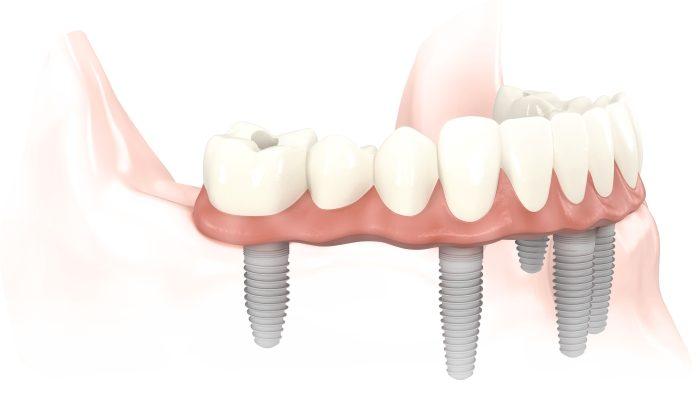 dia-chi-trong-rang-implant-tot-nhat-o-dau-2