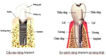implant nha khoa là gì?