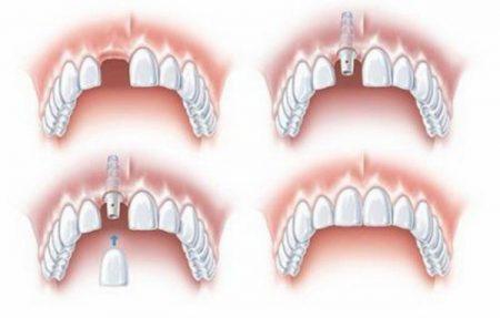 ky-thuat-trong-rang-implant-1