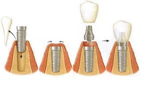 ky-thuat-trong-rang-implant-3