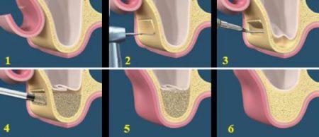nang-xoang-ham-trong-cay-ghep-rang-implant-1