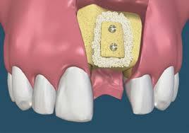 nang-xoang-ham-trong-cay-ghep-rang-implant-3