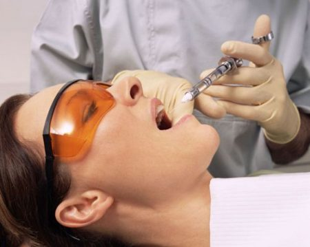 Nhổ răng hàm không đau với kỹ thuật hiện đại