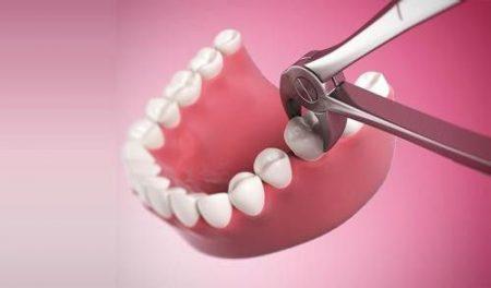 Nhổ răng khôn đau mấy ngày là hết