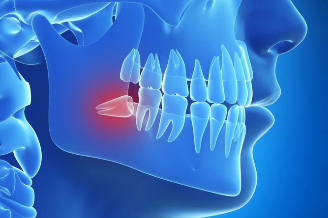 Nhổ răng khôn giá bao nhiêu tiền?