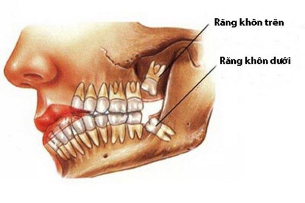 nhổ răng khôn số 8 có ảnh hưởng gì không