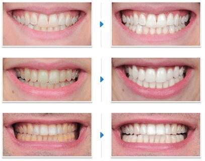 Những cách tẩy trắng răng tại nha khoa