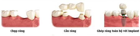 Những phương pháp trồng răng sứ thẩm mỹ hiện nay