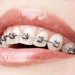 Niềng 2 răng cửa hết bao nhiêu tiền?