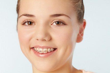 Niềng 4 răng cửa có được không ?