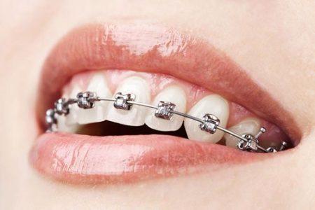 Niềng răng có hôn được không nhỉ?