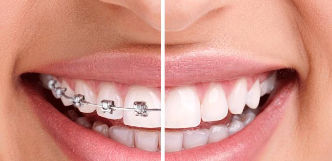 Niềng răng có tác dụng gì?