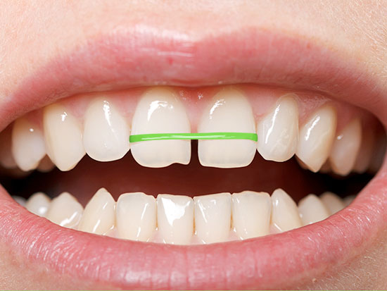Niềng răng cửa bị mọc lệch như thế nào?