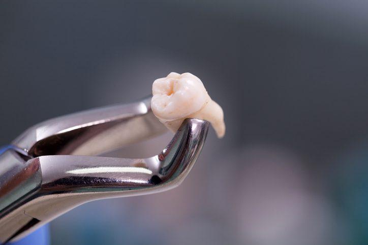 niềng răng hô có phải nhổ răng không