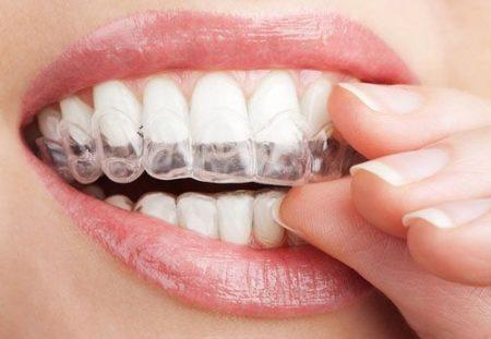 Niềng răng không mắc cài giá bao nhiêu ?