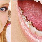Niềng răng mắc cài trong giá bao nhiêu tiền?