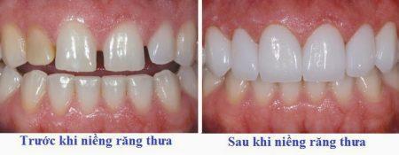 Niềng răng tháo lắp có hiệu quả không?