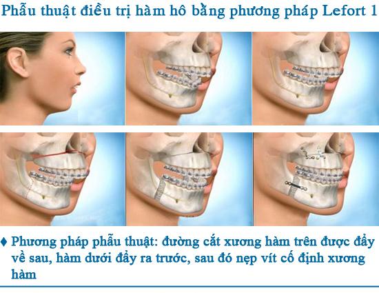 phau-thuat-xuong-ham-co-nguy-hiem-khong-1