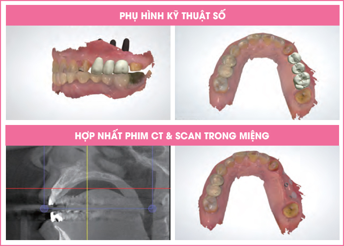 quy-trinh-cay-ghep-implant-2