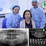 quy-trinh-cay-ghep-implant-3