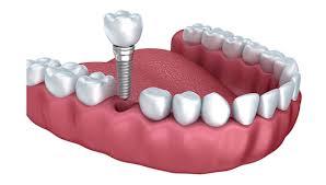 Quá trình cấy ghép implant cho răng cửa