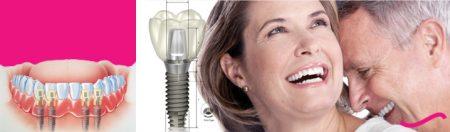 Quy trình cấy ghép răng implant thực hiện thế nào cho hiệu quả?