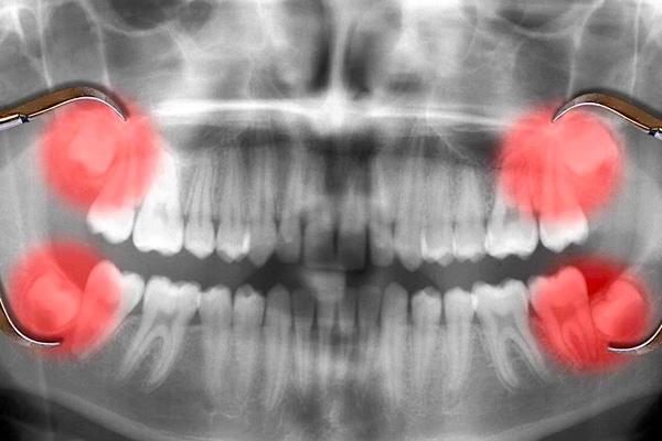 răng khôn bị đau do đâu