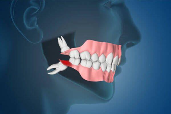 răng khôn hàm trên mọc lệch
