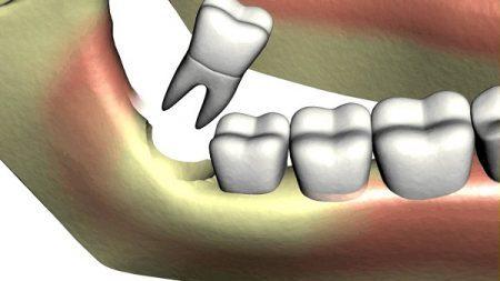 Răng khôn mọc lệch có nên nhổ không?