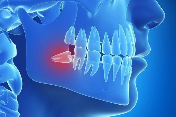 Cách xử lý răng khôn mọc ra má